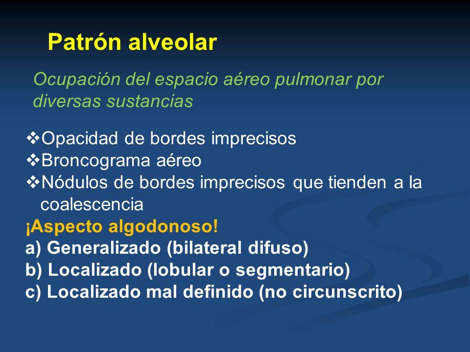 Patrón alveolar Ocupación del espacio aéreo pulmonar por diversas sustancias Opacidad de bordes imprecisos Broncograma aéreo Nódulos de bordes impreci