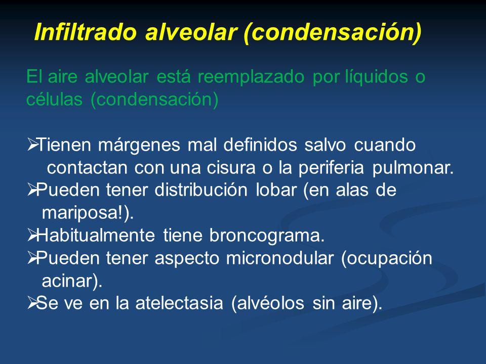 Infiltrado alveolar (condensación) El aire alveolar está reemplazado por líquidos o células (condensación) Tienen márgenes mal definidos salvo cuando