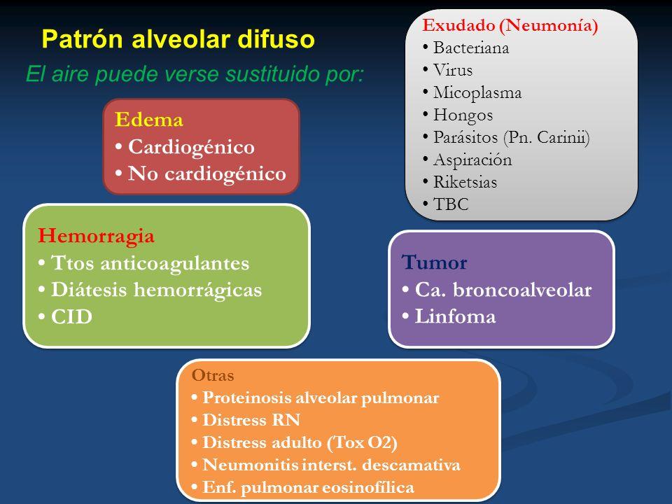Patrón alveolar difuso El aire puede verse sustituido por: Edema Cardiogénico No cardiogénico Exudado (Neumonía) Bacteriana Virus Micoplasma Hongos Pa