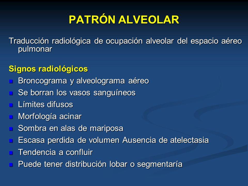 PATRÓN ALVEOLAR Traducción radiológica de ocupación alveolar del espacio aéreo pulmonar Signos radiológicos Broncograma y alveolograma aéreo Broncogra
