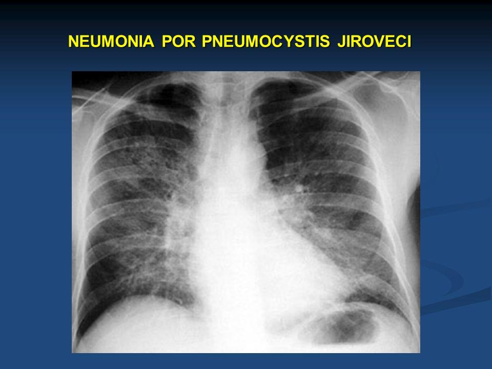 NEUMONIA POR PNEUMOCYSTIS JIROVECI