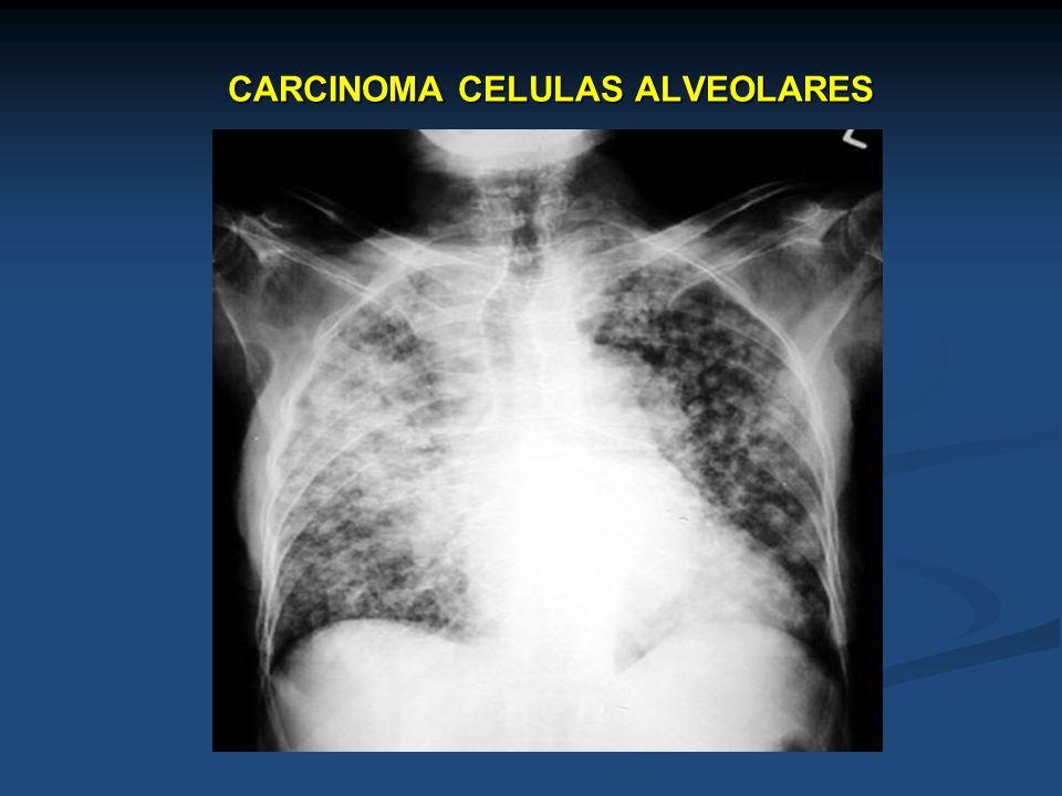 CARCINOMA CELULAS ALVEOLARES