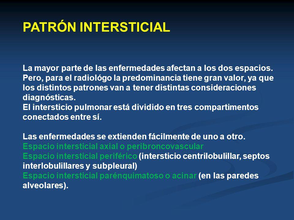 PATRÓN INTERSTICIAL La mayor parte de las enfermedades afectan a los dos espacios. Pero, para el radiológo la predominancia tiene gran valor, ya que l