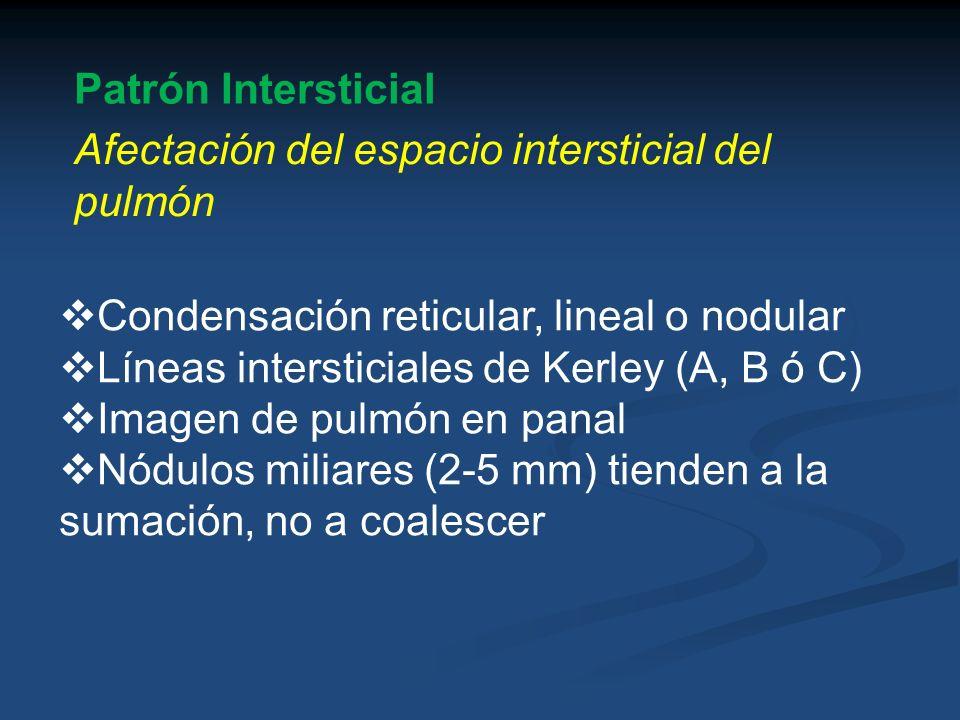 Patrón Intersticial Afectación del espacio intersticial del pulmón Condensación reticular, lineal o nodular Líneas intersticiales de Kerley (A, B ó C)