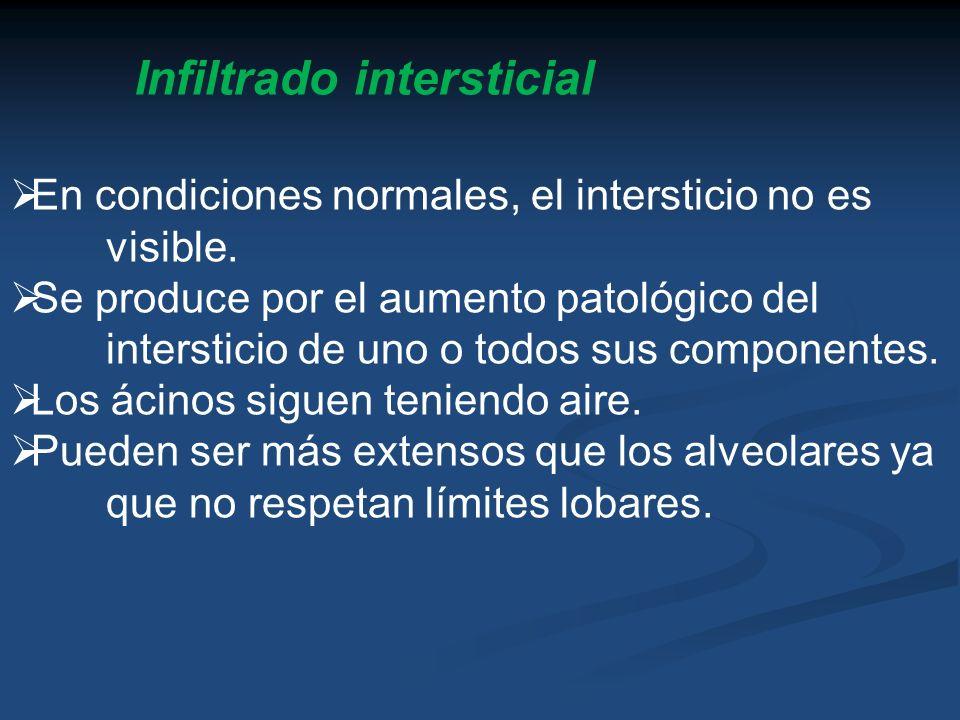 Infiltrado intersticial En condiciones normales, el intersticio no es visible. Se produce por el aumento patológico del intersticio de uno o todos sus
