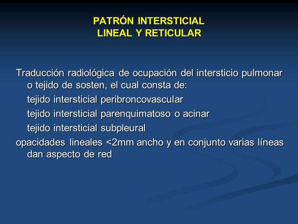 PATRÓN INTERSTICIAL LINEAL Y RETICULAR Traducción radiológica de ocupación del intersticio pulmonar o tejido de sosten, el cual consta de: tejido inte