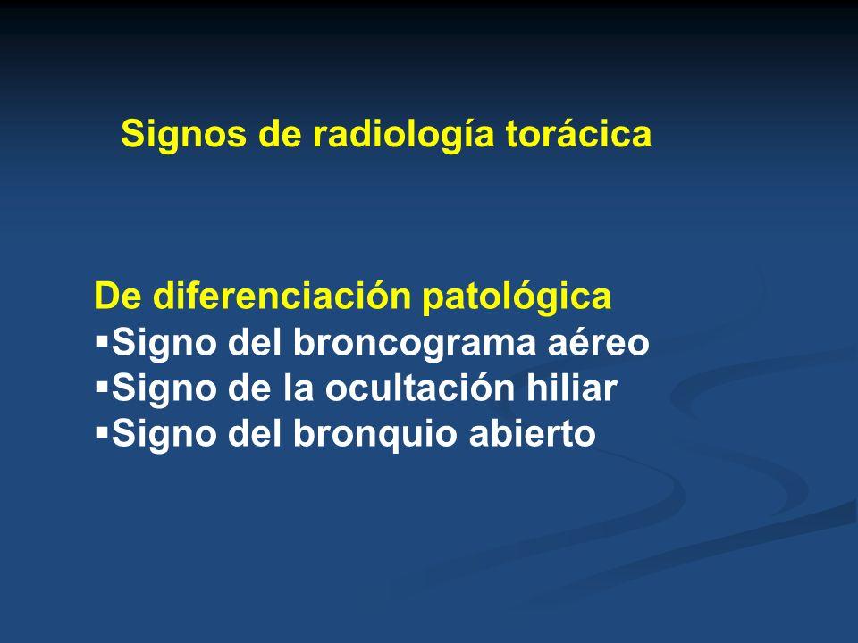 Agrandamiento hiliar bilateral HTA pulmonar IC izquierda, enfisema Adenopatías hiliares bilaterales Neoplasias (Linfoma, metástasis, ca broncogénico) Inflamaciones Sarcoidosis, enf.