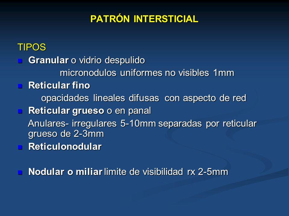 TIPOS Granular o vidrio despulido Granular o vidrio despulido micronodulos uniformes no visibles 1mm micronodulos uniformes no visibles 1mm Reticular