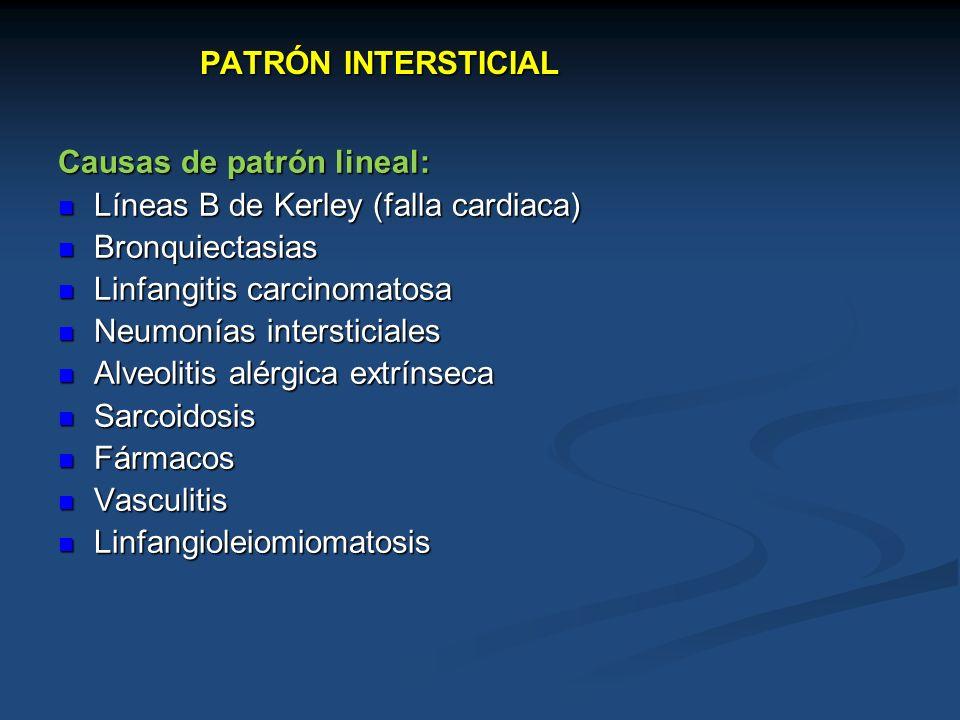 PATRÓN INTERSTICIAL Causas de patrón lineal: Líneas B de Kerley (falla cardiaca) Líneas B de Kerley (falla cardiaca) Bronquiectasias Bronquiectasias L