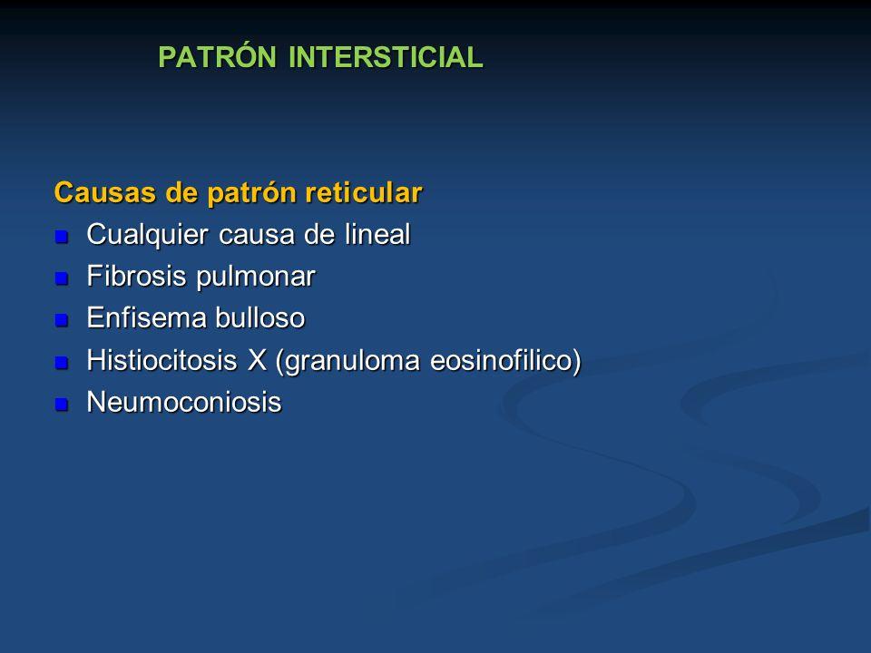 PATRÓN INTERSTICIAL Causas de patrón reticular Cualquier causa de lineal Cualquier causa de lineal Fibrosis pulmonar Fibrosis pulmonar Enfisema bullos