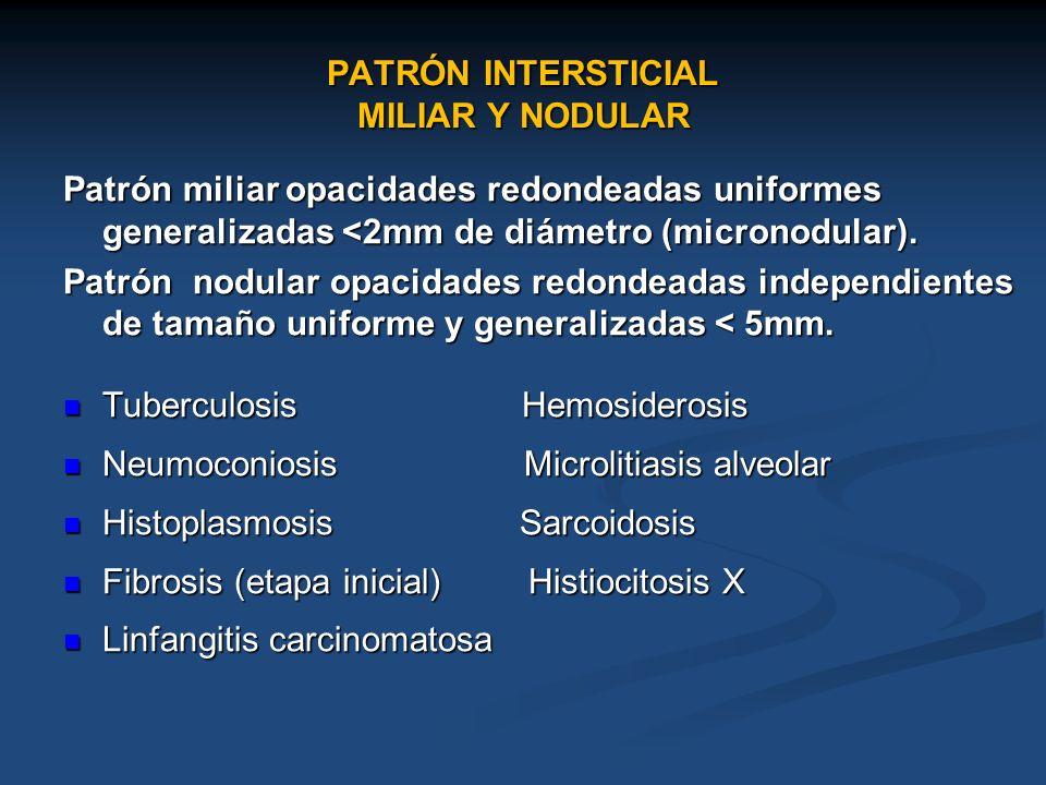 PATRÓN INTERSTICIAL MILIAR Y NODULAR Patrón miliar opacidades redondeadas uniformes generalizadas <2mm de diámetro (micronodular). Patrón nodular opac