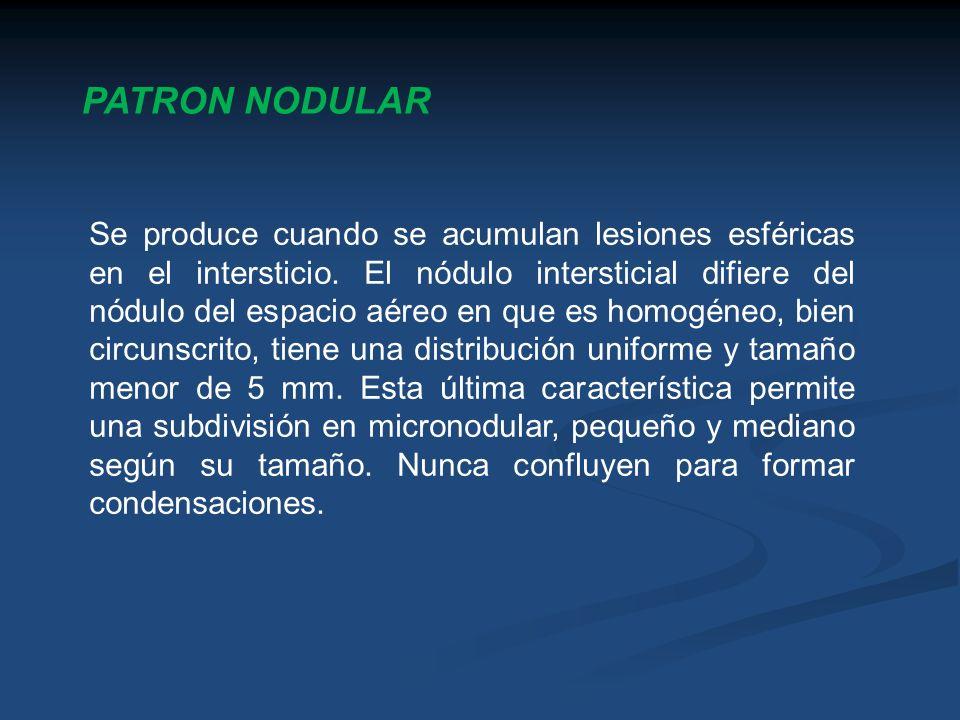 PATRON NODULAR Se produce cuando se acumulan lesiones esféricas en el intersticio. El nódulo intersticial difiere del nódulo del espacio aéreo en que