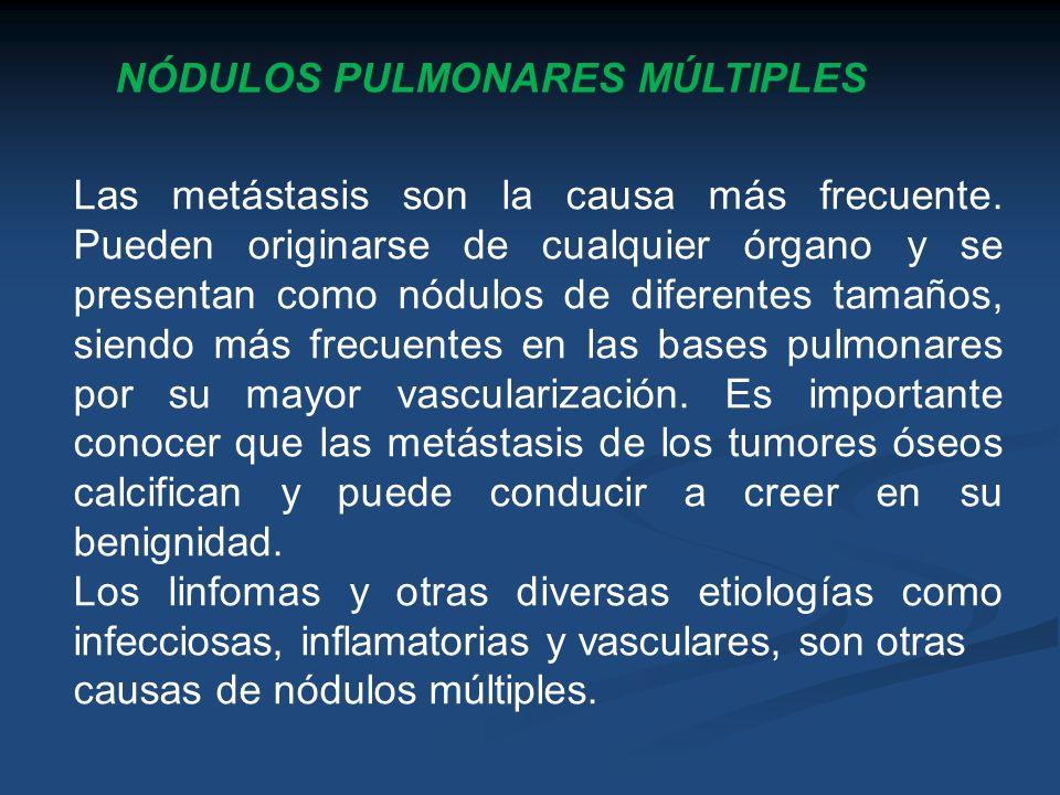 NÓDULOS PULMONARES MÚLTIPLES Las metástasis son la causa más frecuente. Pueden originarse de cualquier órgano y se presentan como nódulos de diferente