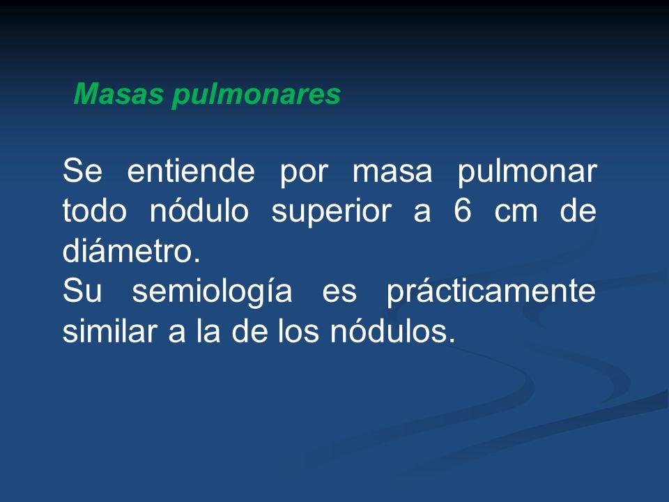 Masas pulmonares Se entiende por masa pulmonar todo nódulo superior a 6 cm de diámetro. Su semiología es prácticamente similar a la de los nódulos.