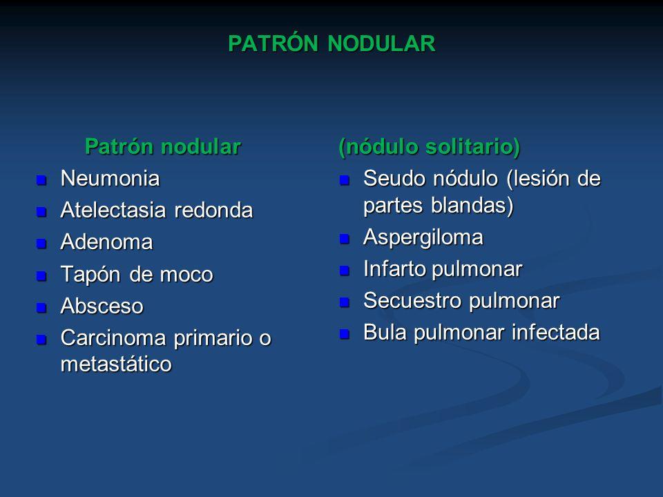 PATRÓN NODULAR Patrón nodular Patrón nodular Neumonia Neumonia Atelectasia redonda Atelectasia redonda Adenoma Adenoma Tapón de moco Tapón de moco Abs