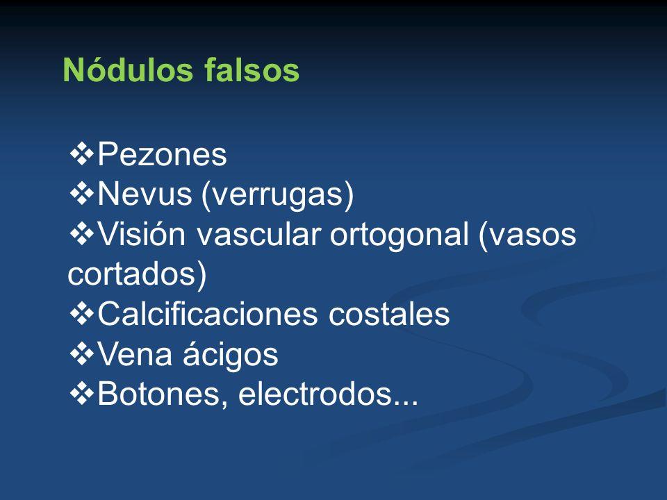 Nódulos falsos Pezones Nevus (verrugas) Visión vascular ortogonal (vasos cortados) Calcificaciones costales Vena ácigos Botones, electrodos...