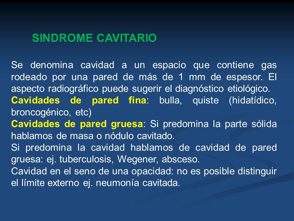 SINDROME CAVITARIO Se denomina cavidad a un espacio que contiene gas rodeado por una pared de más de 1 mm de espesor. El aspecto radiográfico puede su