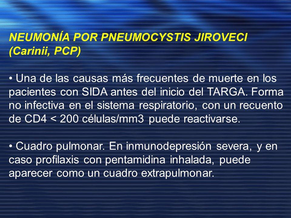 NEUMONÍA POR PNEUMOCYSTIS JIROVECI (Carinii, PCP) Una de las causas más frecuentes de muerte en los pacientes con SIDA antes del inicio del TARGA. For
