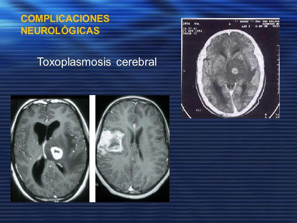 Toxoplasmosis cerebral
