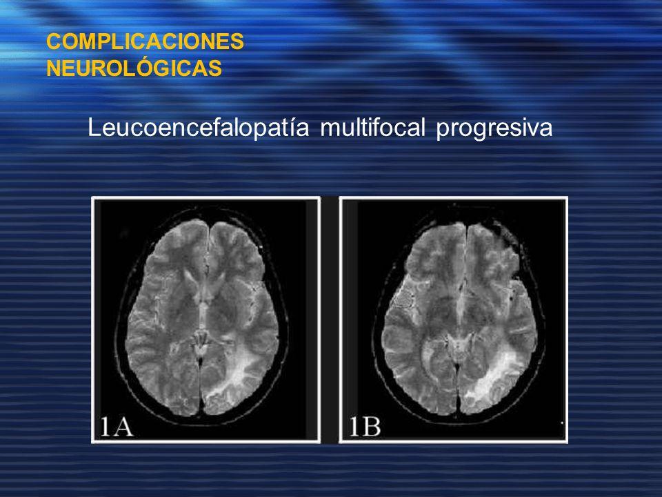 COMPLICACIONES NEUROLÓGICAS Leucoencefalopatía multifocal progresiva