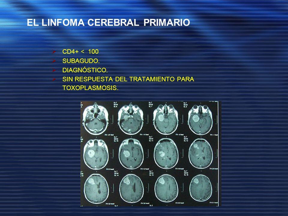 CD4+ < 100 SUBAGUDO. DIAGNÓSTICO. SIN RESPUESTA DEL TRATAMIENTO PARA TOXOPLASMOSIS. EL LINFOMA CEREBRAL PRIMARIO