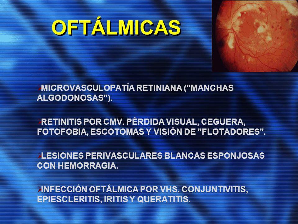 OFTÁLMICAS MICROVASCULOPATÍA RETINIANA (