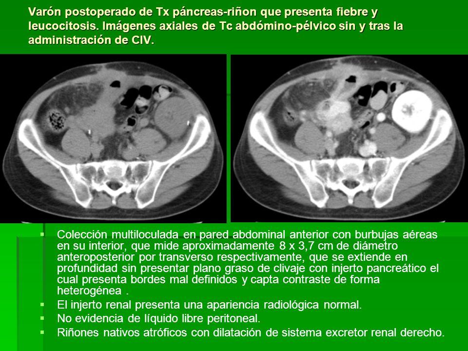 Varón postoperado de Tx páncreas-riñon que presenta fiebre y leucocitosis. Imágenes axiales de Tc abdómino-pélvico sin y tras la administración de CIV
