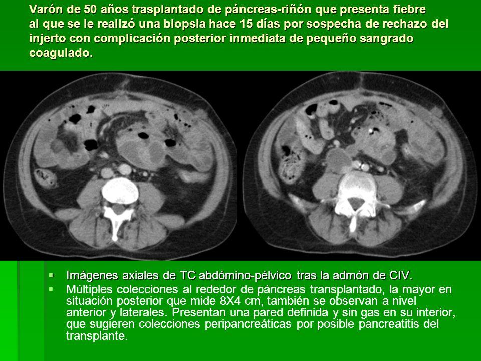Varón de 50 años trasplantado de páncreas-riñón que presenta fiebre al que se le realizó una biopsia hace 15 días por sospecha de rechazo del injerto