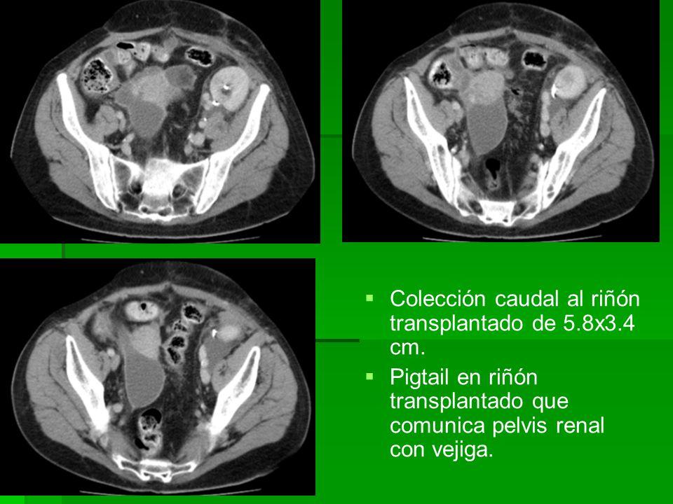 Colección caudal al riñón transplantado de 5.8x3.4 cm. Pigtail en riñón transplantado que comunica pelvis renal con vejiga.