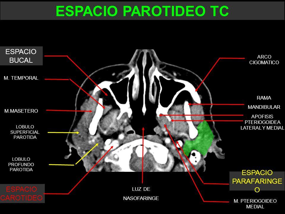 M. TEMPORAL M.MASETERO APOFISIS PTERIOGOIDEA LATERAL Y MEDIAL RAMA MANDIBULAR ARCO CIGOMATICO LUZ DE NASOFARINGE LOBULO SUPERFICIAL PAROTIDA LOBULO PR