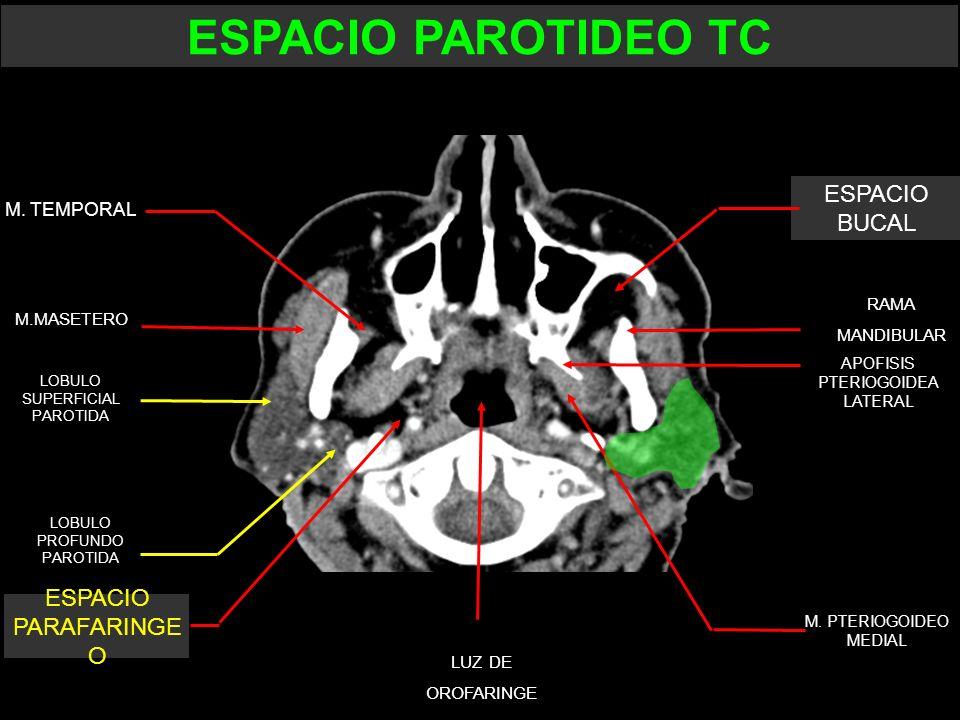 M. TEMPORAL M.MASETERO APOFISIS PTERIOGOIDEA LATERAL RAMA MANDIBULAR LUZ DE OROFARINGE LOBULO SUPERFICIAL PAROTIDA LOBULO PROFUNDO PAROTIDA ESPACIO PA
