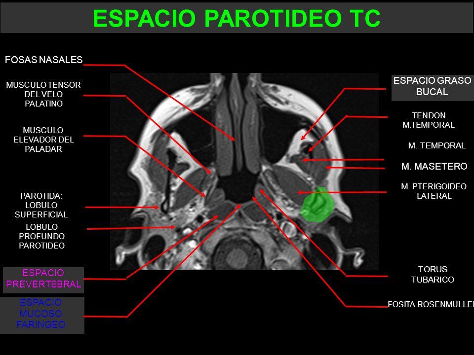 TORUS TUBARICO FOSITA ROSENMULLER M. MASETERO M. TEMPORAL ESPACIO GRASO BUCAL FOSAS NASALES ESPACIO MUCOSO FARINGEO MUSCULO TENSOR DEL VELO PALATINO M