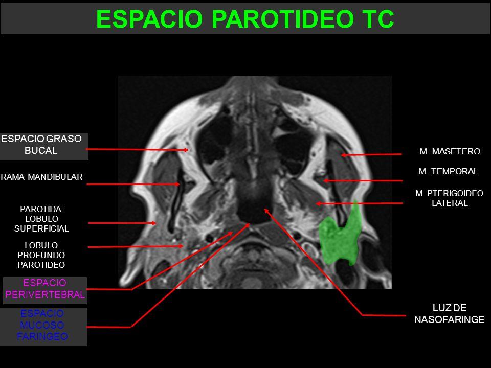 LUZ DE NASOFARINGE M. MASETERO M. TEMPORAL RAMA MANDIBULAR ESPACIO GRASO BUCAL M. PTERIGOIDEO LATERAL LOBULO PROFUNDO PAROTIDEO PAROTIDA: LOBULO SUPER