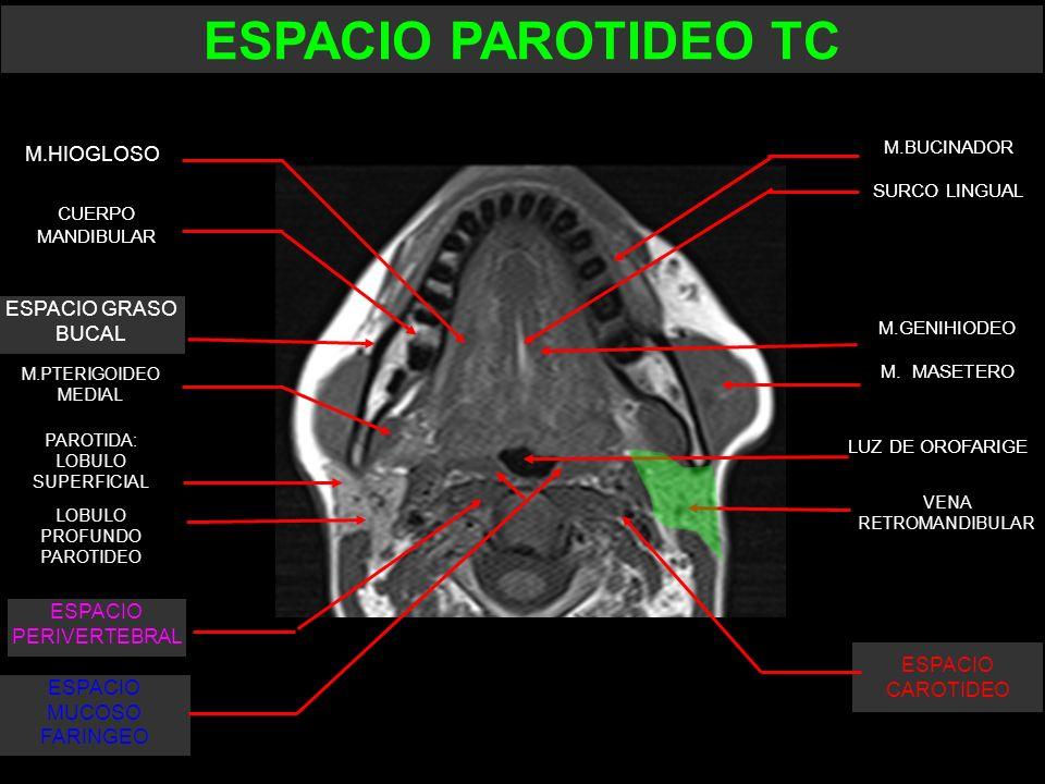 M. MASETERO CUERPO MANDIBULAR ESPACIO GRASO BUCAL LOBULO PROFUNDO PAROTIDEO PAROTIDA: LOBULO SUPERFICIAL M.PTERIGOIDEO MEDIAL M.GENIHIODEO SURCO LINGU