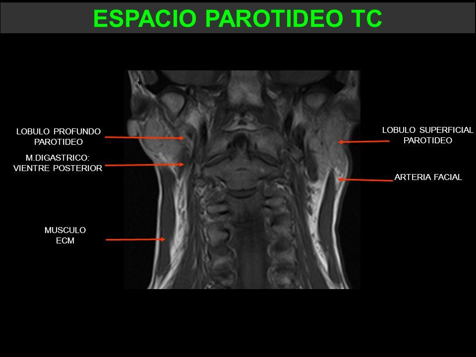 LOBULO PROFUNDO PAROTIDEO LOBULO SUPERFICIAL PAROTIDEO ARTERIA FACIAL MUSCULO ECM M.DIGASTRICO: VIENTRE POSTERIOR ESPACIO PAROTIDEO TC