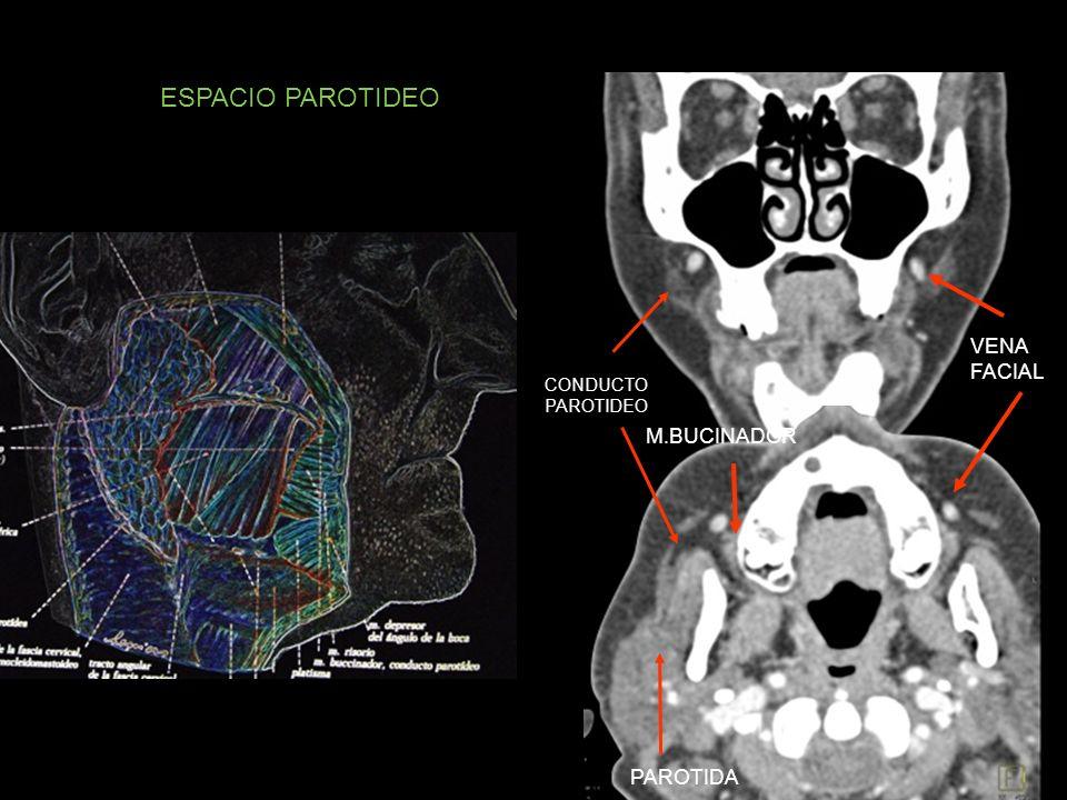 ESPACIO PAROTIDEO CONDUCTO PAROTIDEO VENA FACIAL PAROTIDA M.BUCINADOR