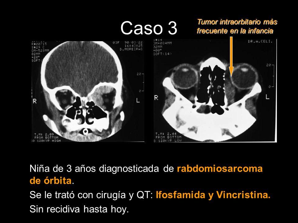 Niña de 3 años diagnosticada de rabdomiosarcoma de órbita. Se le trató con cirugía y QT: Ifosfamida y Vincristina. Sin recidiva hasta hoy. Tumor intra