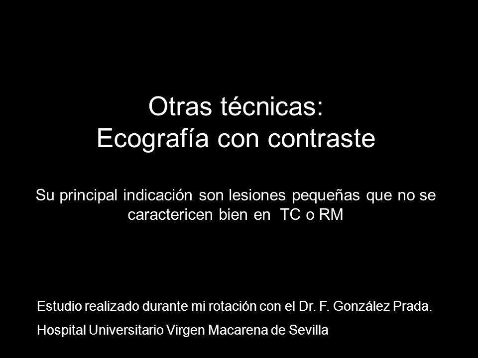 Otras técnicas: Ecografía con contraste Su principal indicación son lesiones pequeñas que no se caractericen bien en TC o RM Estudio realizado durante