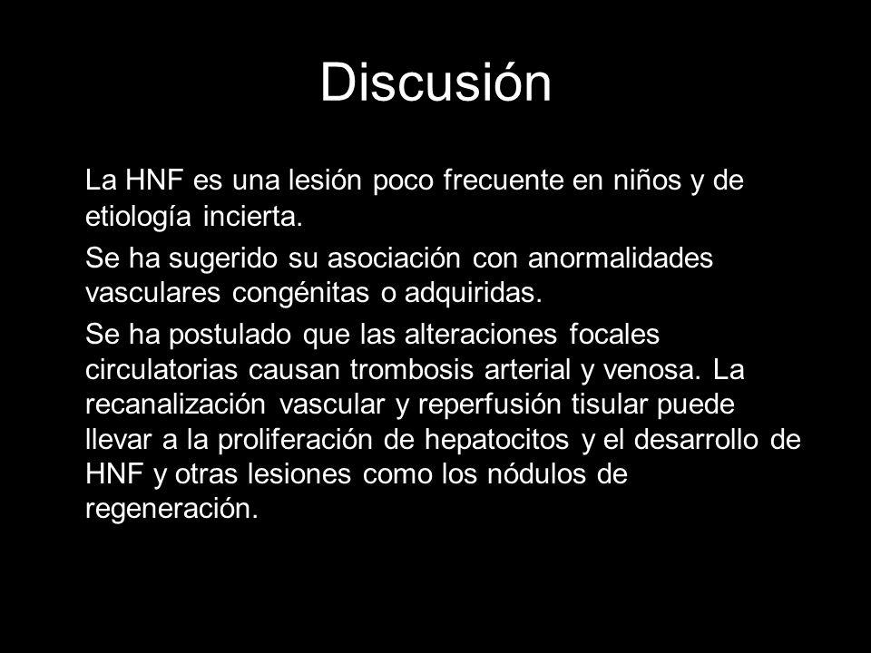 Discusión La HNF es una lesión poco frecuente en niños y de etiología incierta. Se ha sugerido su asociación con anormalidades vasculares congénitas o