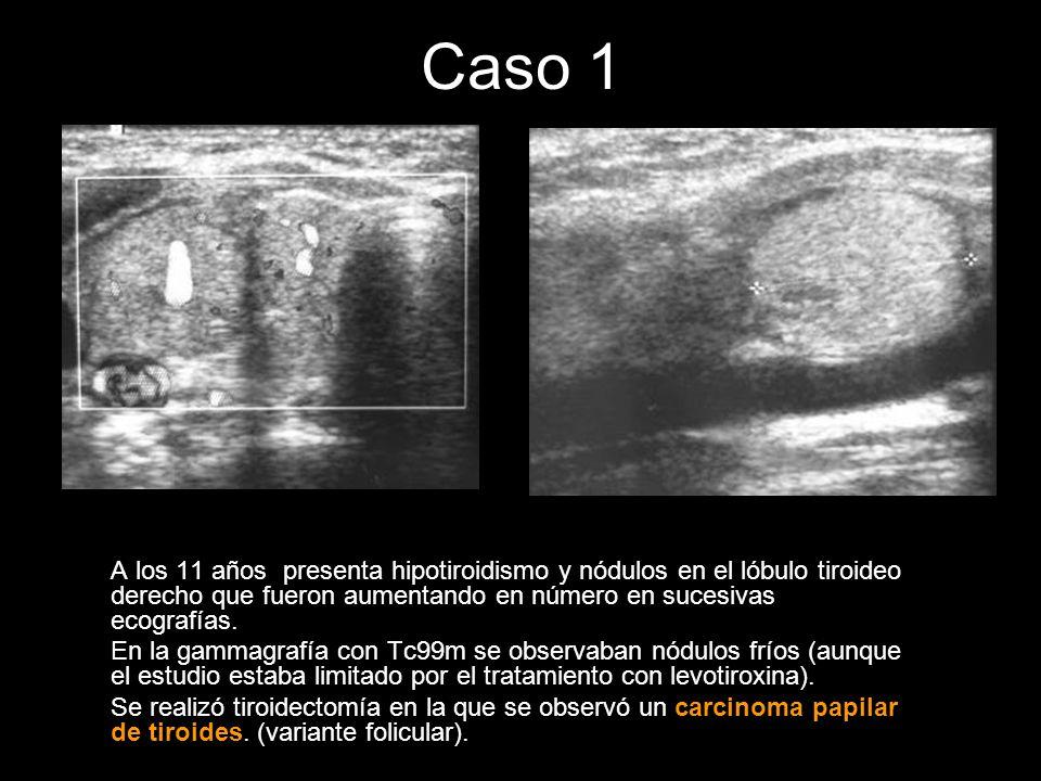 Caso 1 Dos años después se realiza una ecografía abdominal en la que se observan dos nódulos hipoecoicos de bordes bien definidos en el lóbulo hepático derecho y uno en el izquierdo.