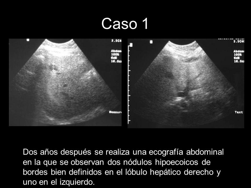Caso 1 Dos años después se realiza una ecografía abdominal en la que se observan dos nódulos hipoecoicos de bordes bien definidos en el lóbulo hepátic