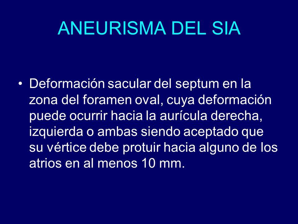 ANEURISMA DEL SIA Deformación sacular del septum en la zona del foramen oval, cuya deformación puede ocurrir hacia la aurícula derecha, izquierda o am