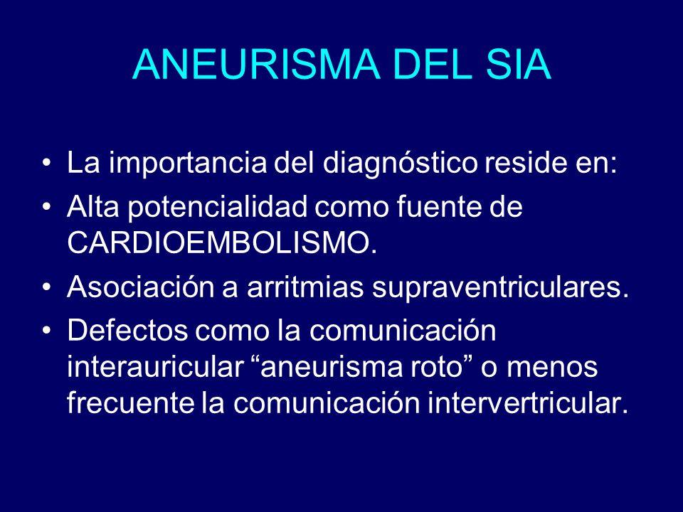 ANEURISMA DEL SIA La importancia del diagnóstico reside en: Alta potencialidad como fuente de CARDIOEMBOLISMO. Asociación a arritmias supraventricular