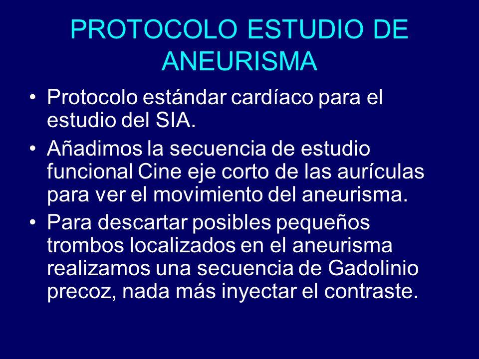PROTOCOLO ESTUDIO DE ANEURISMA Protocolo estándar cardíaco para el estudio del SIA. Añadimos la secuencia de estudio funcional Cine eje corto de las a