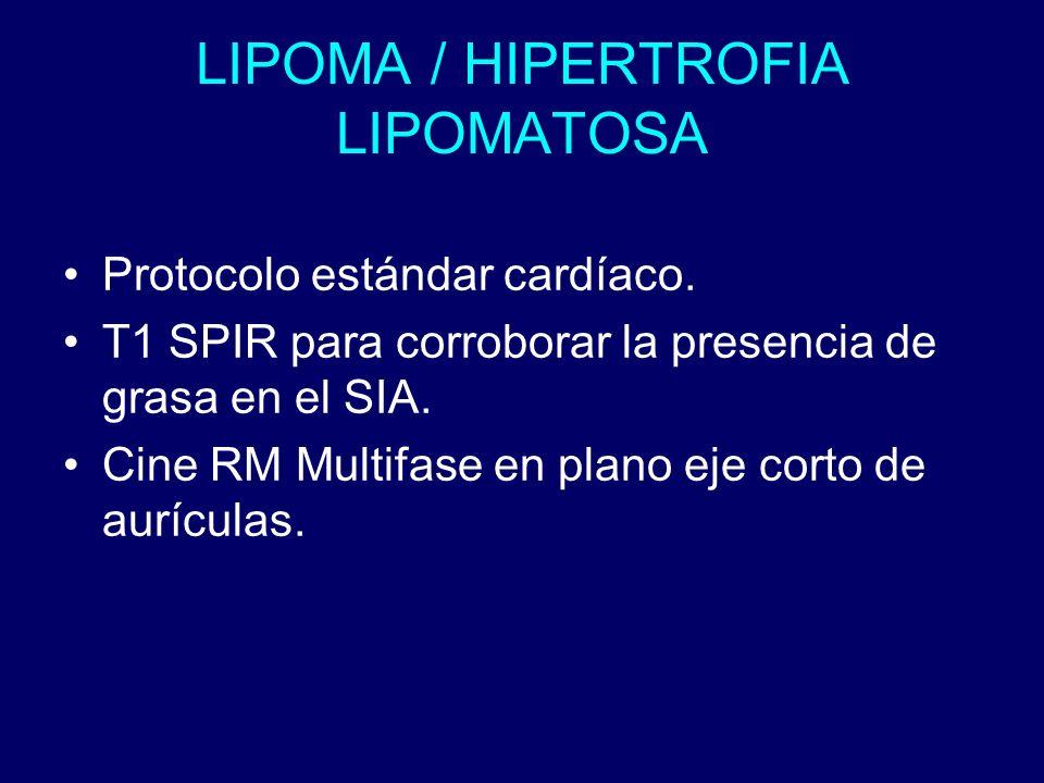 LIPOMA / HIPERTROFIA LIPOMATOSA Protocolo estándar cardíaco. T1 SPIR para corroborar la presencia de grasa en el SIA. Cine RM Multifase en plano eje c