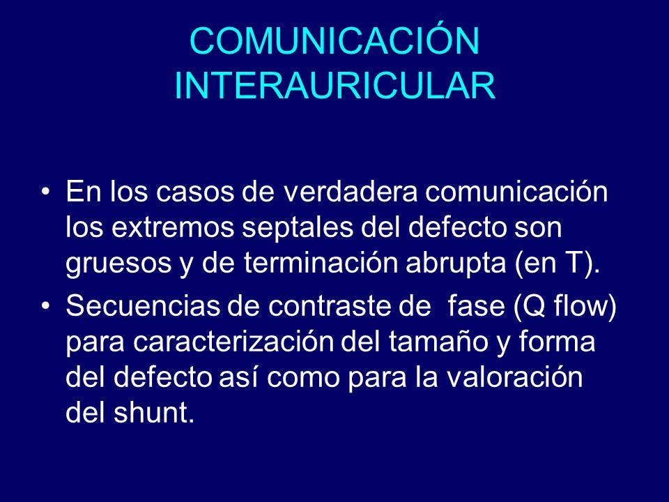 COMUNICACIÓN INTERAURICULAR En los casos de verdadera comunicación los extremos septales del defecto son gruesos y de terminación abrupta (en T). Secu