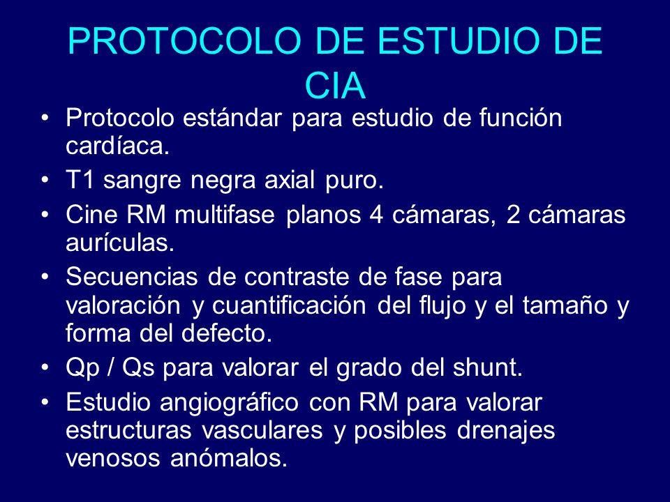 PROTOCOLO DE ESTUDIO DE CIA Protocolo estándar para estudio de función cardíaca. T1 sangre negra axial puro. Cine RM multifase planos 4 cámaras, 2 cám
