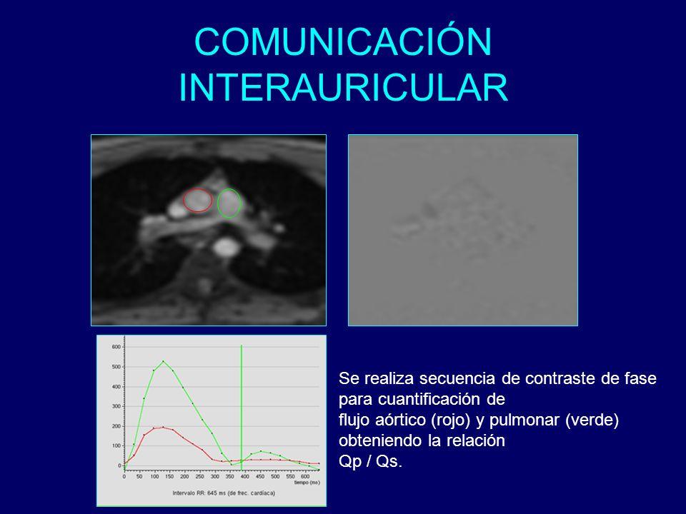 COMUNICACIÓN INTERAURICULAR Se realiza secuencia de contraste de fase para cuantificación de flujo aórtico (rojo) y pulmonar (verde) obteniendo la rel