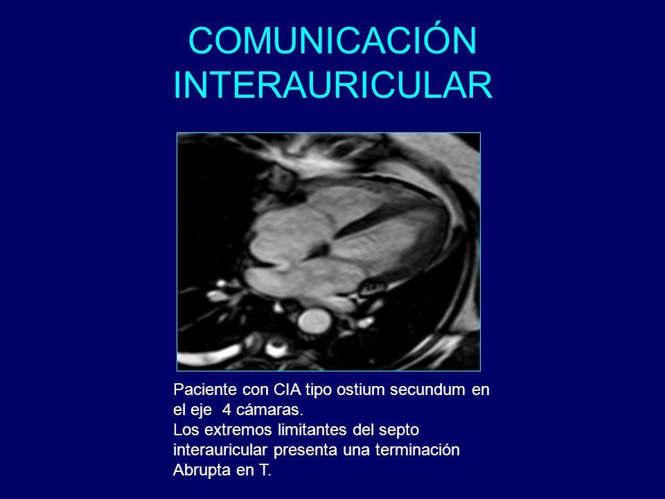 COMUNICACIÓN INTERAURICULAR Paciente con CIA tipo ostium secundum en el eje 4 cámaras. Los extremos limitantes del septo interauricular presenta una t