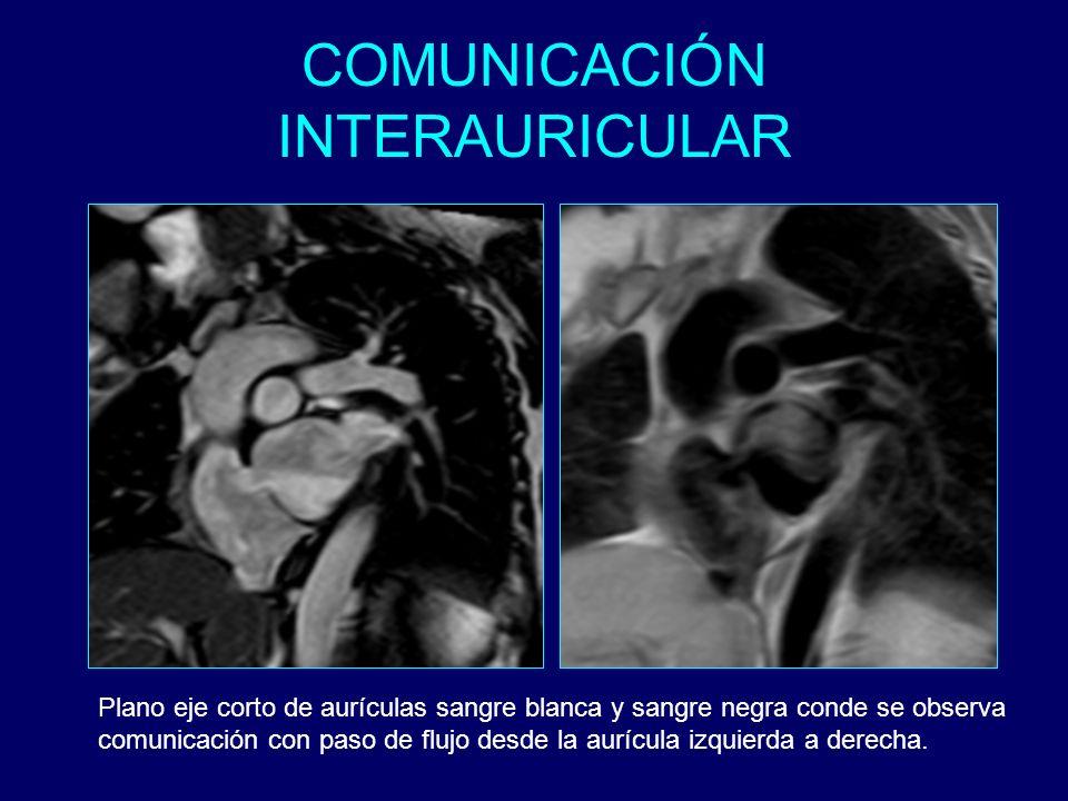 Plano eje corto de aurículas sangre blanca y sangre negra conde se observa comunicación con paso de flujo desde la aurícula izquierda a derecha.